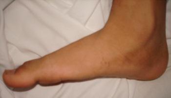 โรคเท้าแบน