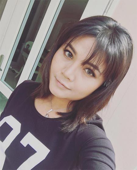 ตั๊กแตน ชลดา before after